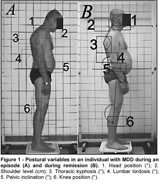 Posture and depression: practical tips from research